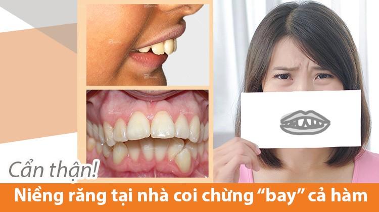 Niềng răng tại nhà: Nhiều nguy cơ khó lường