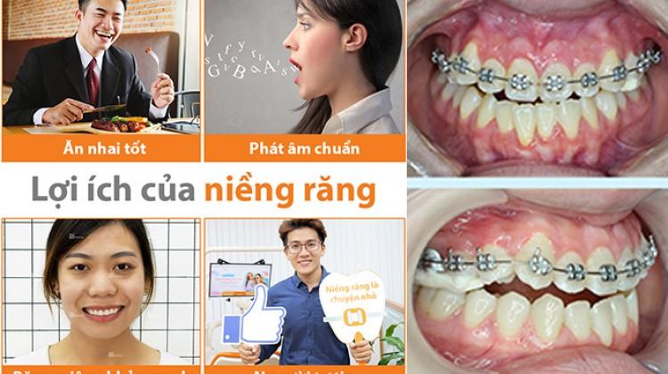 Niềng răng để làm gì? Các lợi ích của niềng răng mang lại