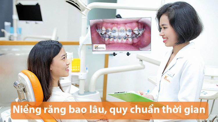 Niềng răng bao lâu, quy chuẩn về thời gian niềng răng