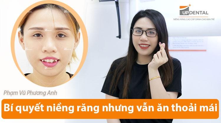 Bí quyết niềng răng nhưng vẫn ăn uống thoải mái - Review niềng răng Phạm Vũ Phương Anh