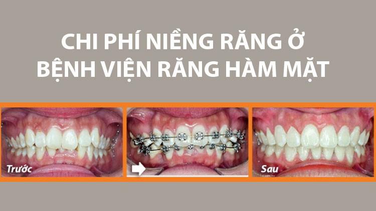 Chi phí niềng răng ở bệnh viện răng hàm mặt