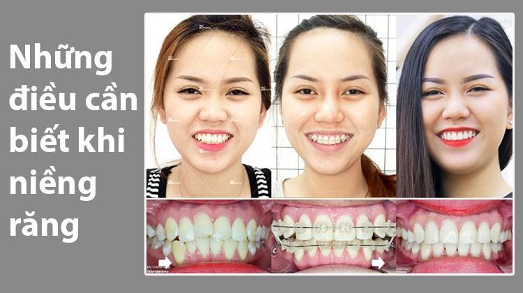 Những điều cần biết và lưu ý khi niềng răng