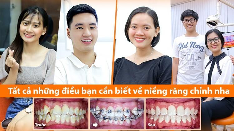 Tư vấn niềng răng: Tất cả những điều bạn cần biết về niềng răng chỉnh nha