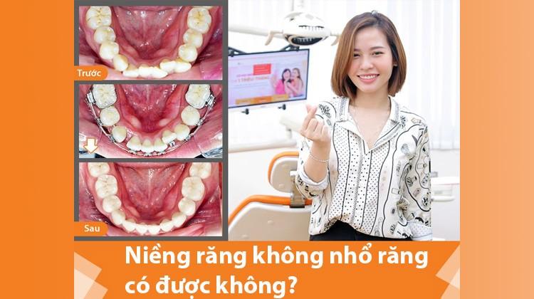 Niềng răng không nhổ răng có được không?