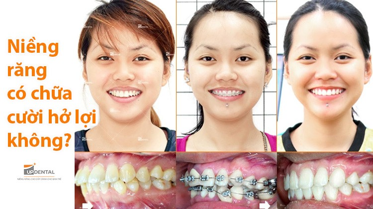 Niềng răng có chữa được cười hở lợi không?
