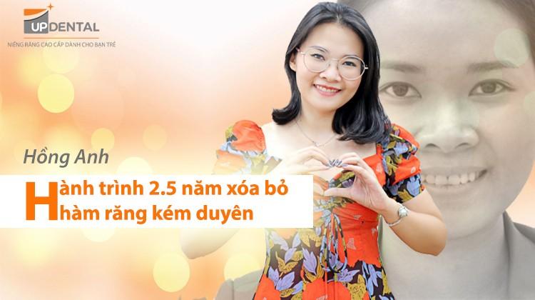 Hồng Anh - Quý cô công ty thi công, nội thất và hành trình 2.5 năm xóa bỏ hàm răng kém duyên