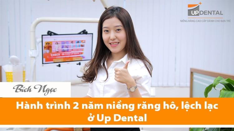 Bích Ngọc và hành trình 2 năm niềng răng hô, lệch lạc ở Up Dental