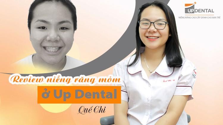 Review niềng răng móm ở Up Dental của cô bạn Quế Chi