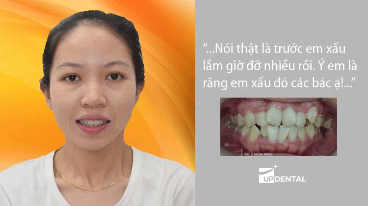 Chia sẻ: Hành trình niềng răng lệch lạc sở hữu hàm răng đẹp khách hàng Kim Liên