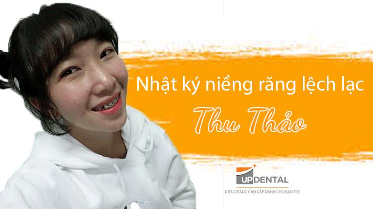 Điều trị răng lệch lạc bằng phương pháp niềng răng - Thu Thảo