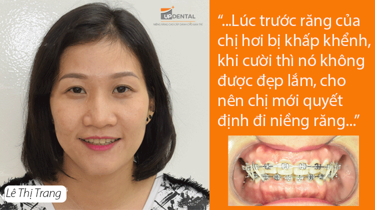 Cái răng cái tóc là góc con người - Review niềng răng của Lê Trang