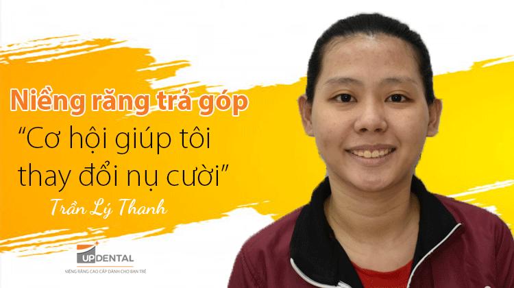 Niềng răng trả góp: Cơ hội giúp tôi thay đổi nụ cười - Khách hàng Lý Thanh
