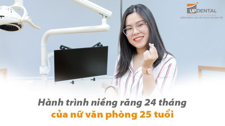 Hành trình niềng răng 24 tháng của nữ văn phòng 25 tuổi