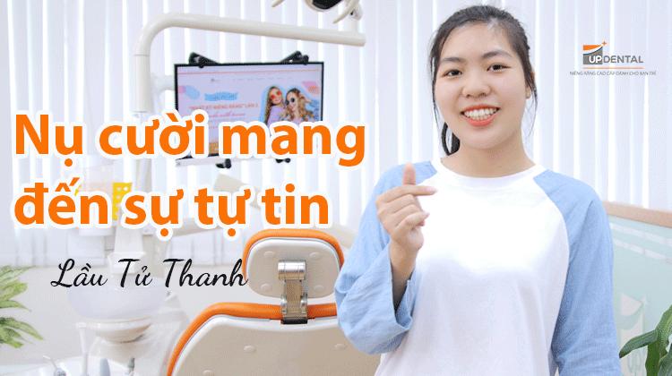 Review về quá trình niềng răng của Tử Thanh