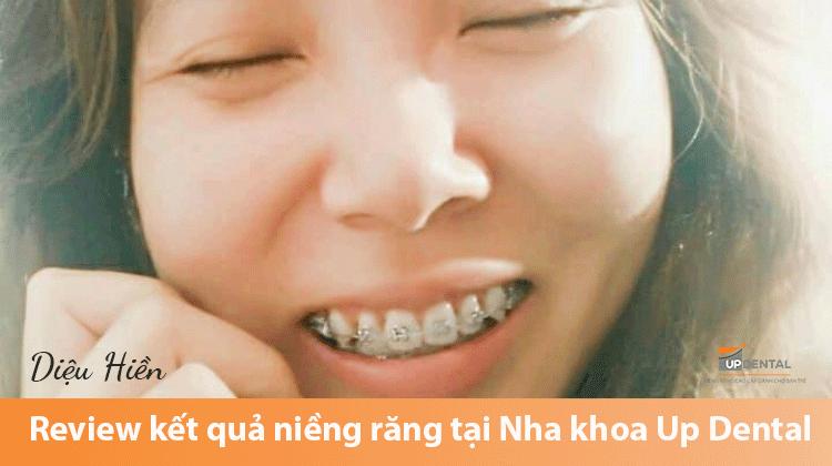 Review kết quả niềng răng tại Nha khoa Up Dental - Khách hàng Diệu Hiền