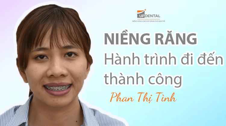 Niềng răng: Hành trình đi đến thành công - Phan Thị Tình
