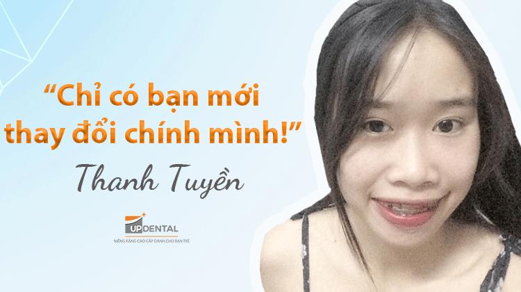 Kinh nghiệm và quy trình niềng răng mắc cài kim loại - Khách hàng Thanh Tuyền