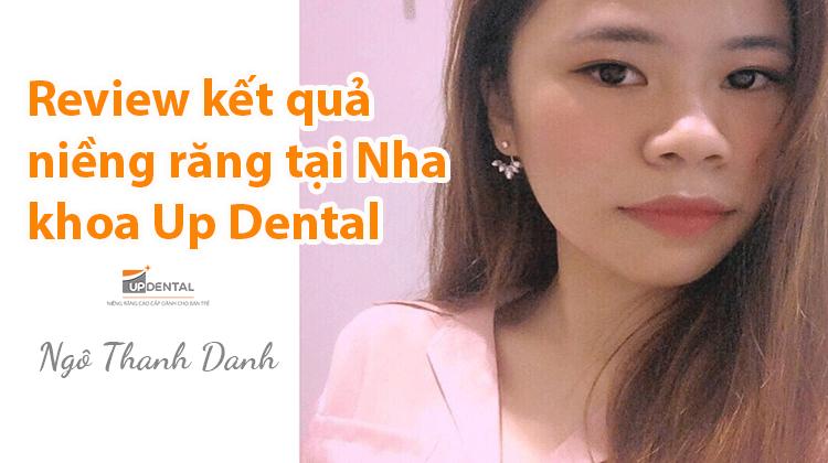 Review kết quả niềng răng tại Nha khoa Up Dental - Thanh Danh