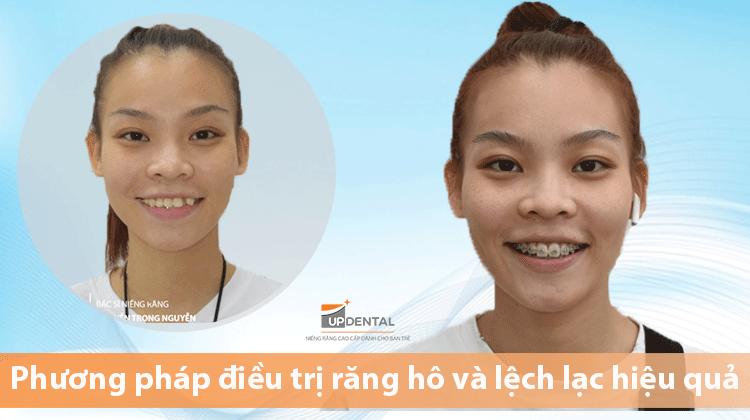 Phương pháp điều trị răng hô và lệch lạc hiệu quả - Thảo Ngân