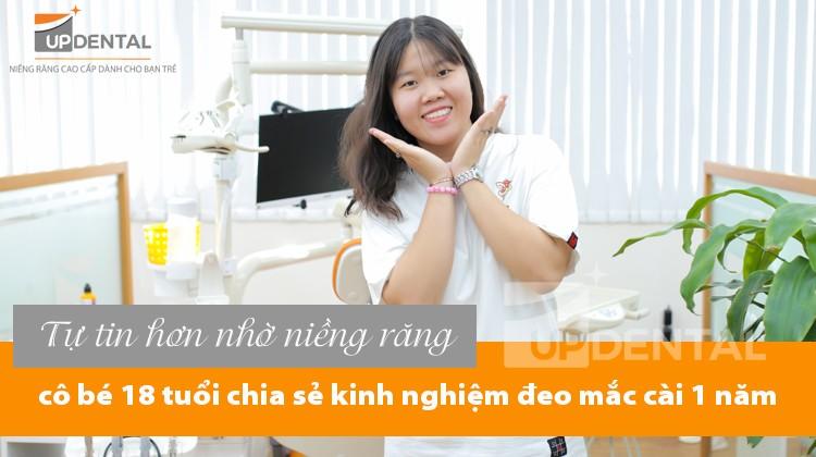Tự tin hơn nhờ niềng răng, cô bé 18 tuổi chia sẻ kinh nghiệm đeo mắc cài 1 năm