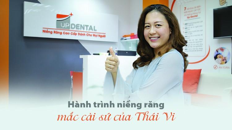 Hành trình niềng răng mắc cài sứ của Thái Vi