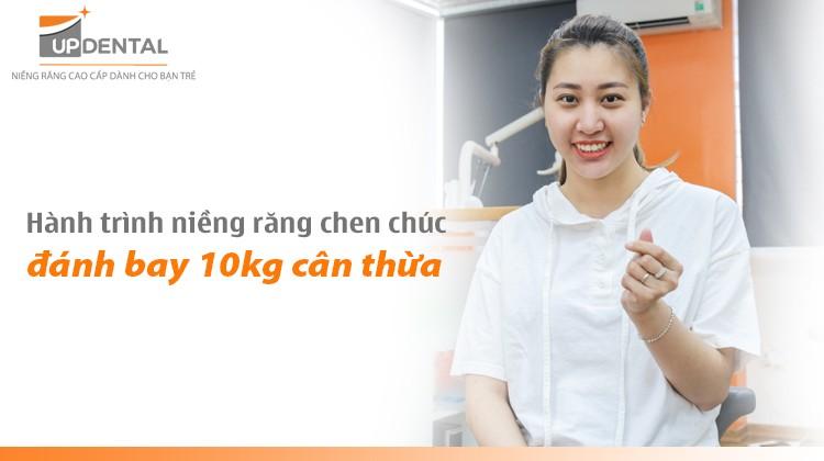 Hành trình niềng răng chen chúc đánh bay 10kg cân thừa