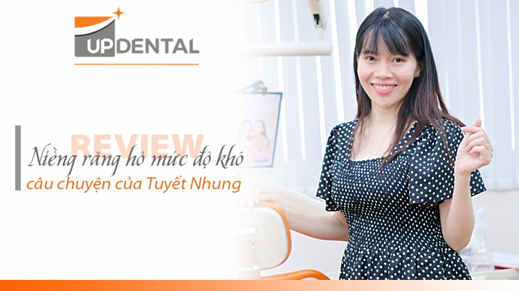 Răng hô mức độ khó và câu chuyện niềng răng thú vị của mẹ bầu Tuyết Nhung