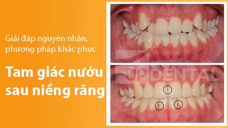 Tam giác nướu sau niềng răng: Giải đáp nguyên nhân, phương pháp khắc phục