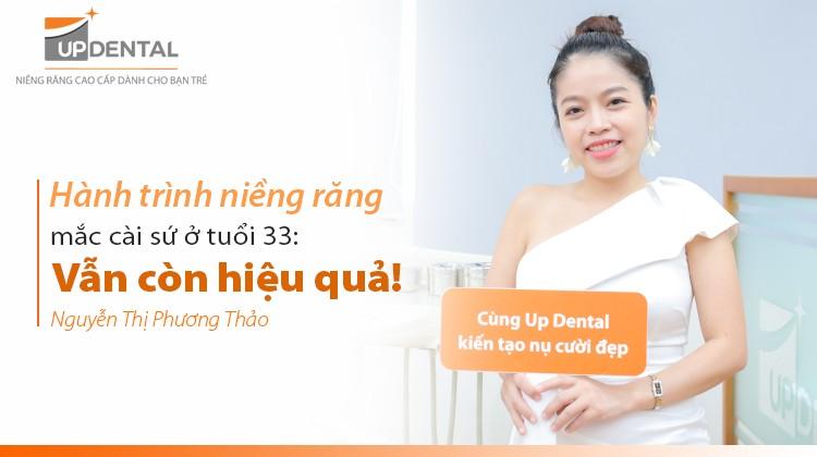 Hành trình niềng răng mắc cài sứ ở tuổi 33: Vẫn còn hiệu quả!