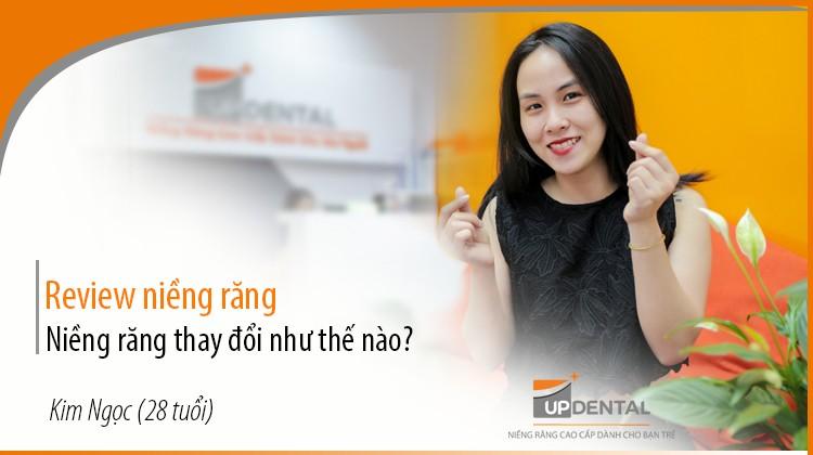 Niềng răng thay đổi như thế nào? - Review của cô nàng Kim Ngọc (28 tuổi)