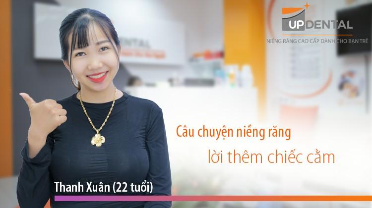 Câu chuyện niềng răng lời thêm chiếc cằm của cô nàng Thanh Xuân (22 tuổi)