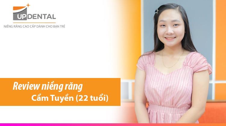 Review niềng răng hô của cô nàng sợ đau - Cẩm Tuyền (22 tuổi)
