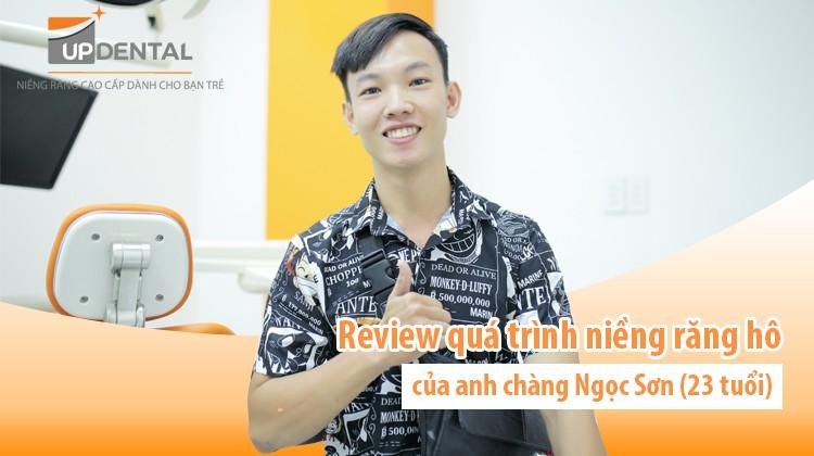 Review quá trình niềng răng hô của anh chàng Ngọc Sơn (23 tuổi)