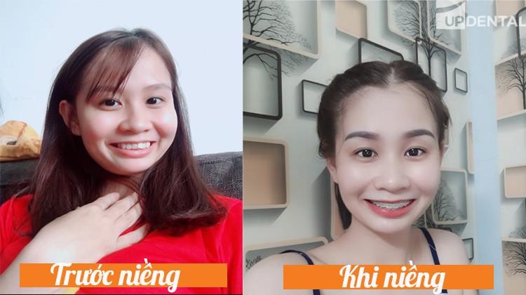 Cảm nhận các giai đoạn niềng răng của Hà Thị Trang