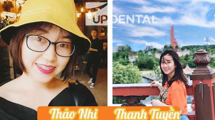 Hành trình niềng răng thay đổi nụ cười của Thanh Tuyền và Thảo Nhi