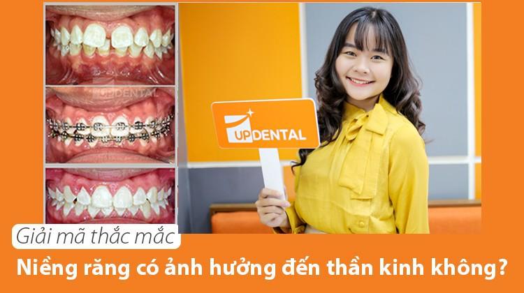 Giải mã thắc mắc niềng răng có ảnh hưởng đến thần kinh không?