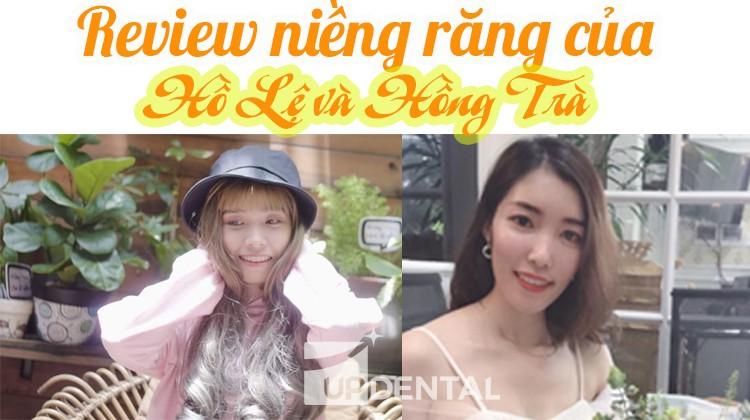 Review niềng răng của 2 cô gái Hồ Lệ và Hồng Trà