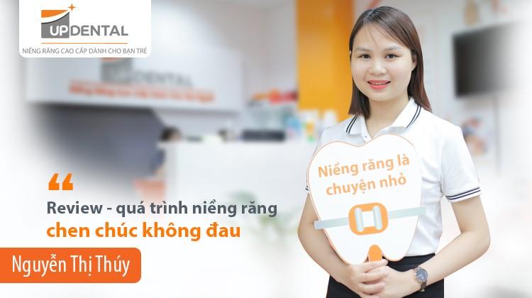 Quá trình niềng răng chen chúc không đau của Nguyễn Thị Thúy (25 tuổi)