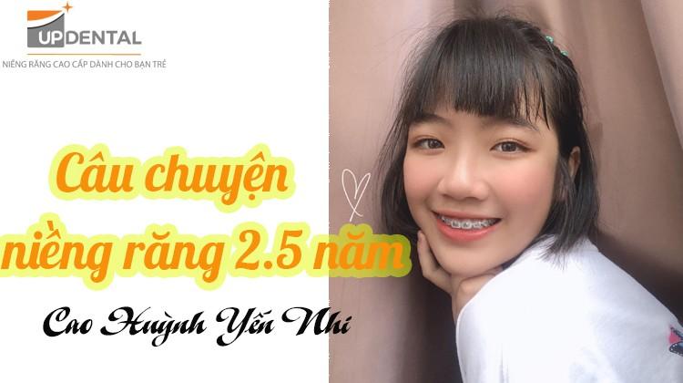 Tâm tình câu chuyện niềng răng 2.5 năm của cô nàng Yến Nhi