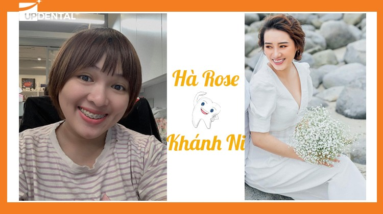 Chia sẻ trải nghiệm niềng răng của hai cô gái Hà Rose và Khánh Ni