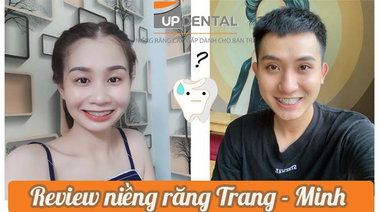 Review niềng răng thú vị của Hà Trang và Nhựt Minh