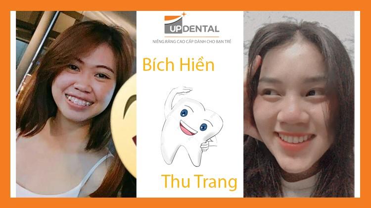 Sau khi niềng răng, Bích Hiền và Thu Trang nói gì về kết quả?