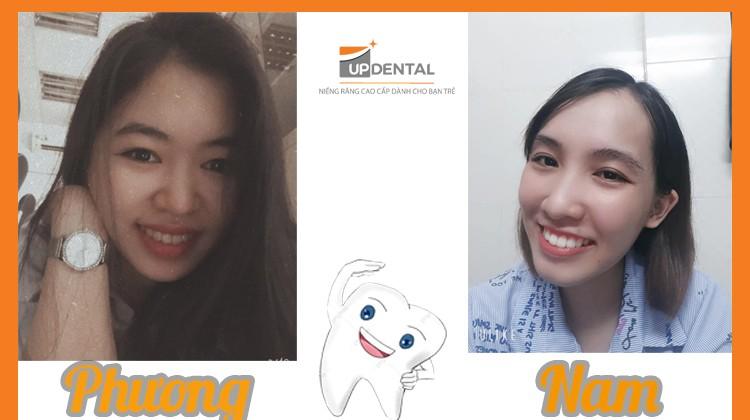 Quyết tâm niềng răng hai cô gái thay đổi diện mạo bất ngờ
