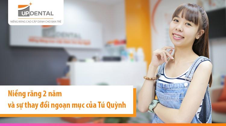 Niềng răng 2 năm và sự thay đổi ngoạn mục của Tú Quỳnh (25 tuổi)