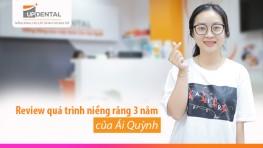 Review quá trình niềng răng 3 năm của Ái Quỳnh