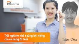 Trải nghiệm nhổ 6 răng khi niềng của cô nàng 28 tuổi