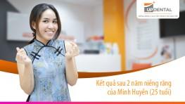Kết quả sau 2 năm niềng răng của Minh Huyền (25 tuổi)