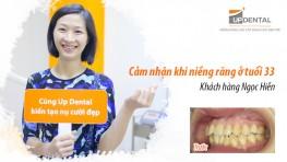 Kinh nghiệm niềng răng ở tuổi 33 - Review niềng răng Ngọc Hiền