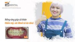 Niềng răng giúp cải thiện thẩm mỹ, sức khoẻ và ăn nhai