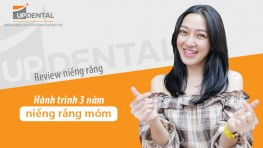 Hành trình 3 năm niềng răng móm - Huỳnh Giao